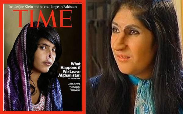 """Joven afgana a la que le mutilaron la nariz luce su nuevo rostro: """"Estoy muy feliz"""""""