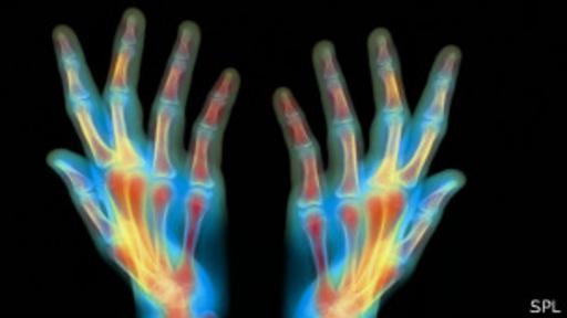 Los humanos pueden regenerar la punta amputada de un dedo.